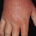 Contact Dermatitis2