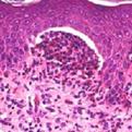 Dermatitis Herpetiformis1