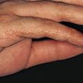 Dyshidrotic Eczema2