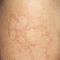 Granuloma Annulare1