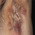 Hidradenitis Suppurativa1