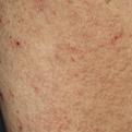 Lichen Amyloidosis1