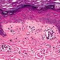 Lichen Amyloidosis2