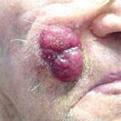 MerkelCellCarcinoma1