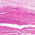 Onychomycosis1