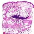 Panniculitis2