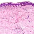Pityriasis Alba2