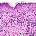 Pityriasis Lichenoides Et Varioliformis Acuta2