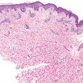 Pityriasis Rosea2
