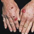 Porphyria Cutanea Tarda1