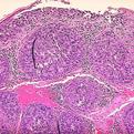 Sebaceous Carcinoma1