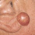 Sebaceous Cyst1