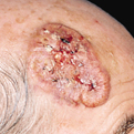 Squamous Cell Carcinoma2