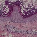 Stasis Dermatitis1